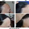 Hair restoration treatments for all types of hair loss