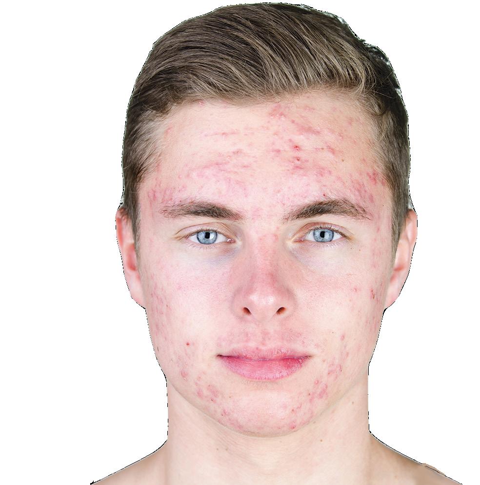 Dermatology: Melbourne Dermatologist