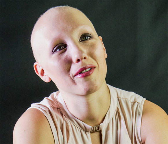 flyer_alopecia_areata_trial