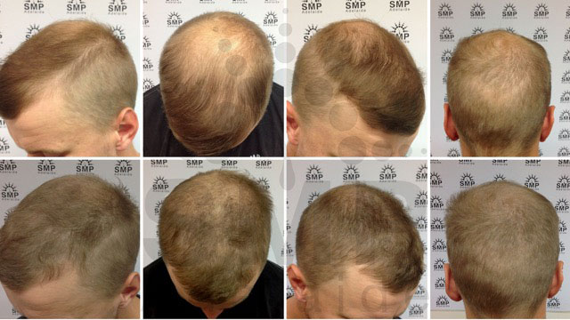 scalp-micropigmentation before and after