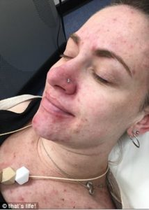 acne while pregnant