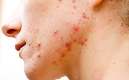 Moderate to Severe Acne Research Study