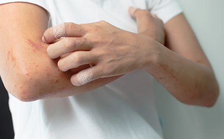 Soothe and heal your urticaria (hives) with these proven treatments