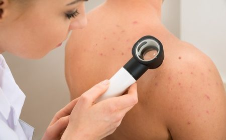 The best way to deal with the rise of melanoma in Australia