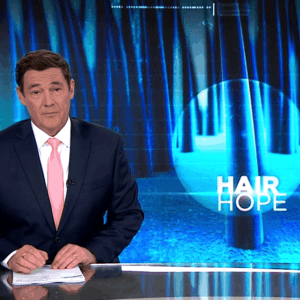 7 news alopecia