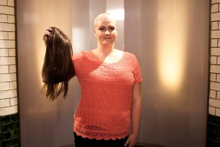 alopecia areata treatment melbourne