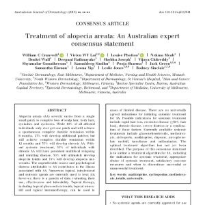 treatment of alopecia areata